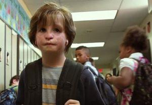 Ein Junge mit auffälligen Veränderungen im Gesicht geht durch den Flur seiner Schule.